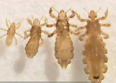 Head lice life stages. (Photo: Dr. Shujuan [Lucy] Li)