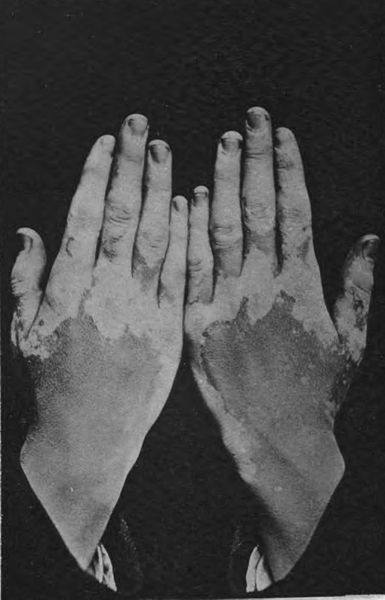 Leucoderma, aka vitiligo, white leprosy, or piebald in old English literature