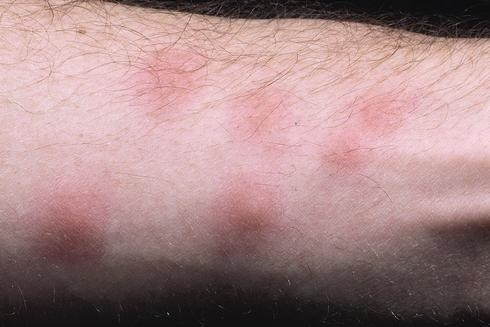 Bed bug bites cause swellings that become red and irritated when scratched. (Photo: Chet K. Fukushima)
