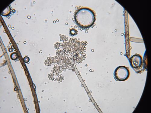 Foto por Mark Bolda, UCCE.  Foto 6. Agregación de esporos de Botrytis cinérea.
