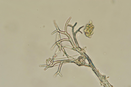 Foto microscopica del patogeno de honguillo.