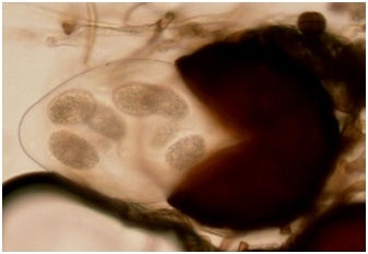 Podosphaera aphanis-cleistothecium-David Gadoury
