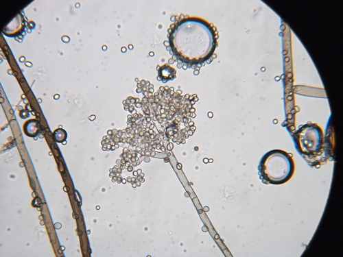 Clustered spores of Botrytis cinerea.  Photo courtesy Steven Koike, UCCE.
