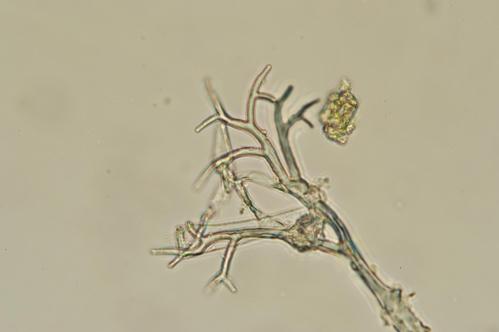 Microscopic view of downy mildew pathogen.
