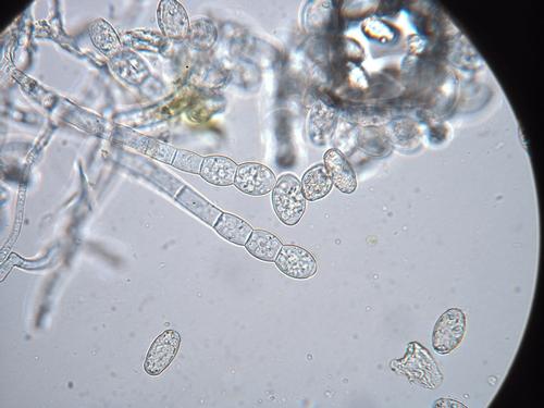 Photo 1: View of the powdery mildew pathogen under the microscope. Photo courtesy Steven Koike.