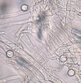 Figure 4. Microscopic structures called chlamydospores enable the Fusarium pathogen to survive in the soil.  Photo Steven Koike, UCCE