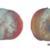 Rhizopus Rot (1)